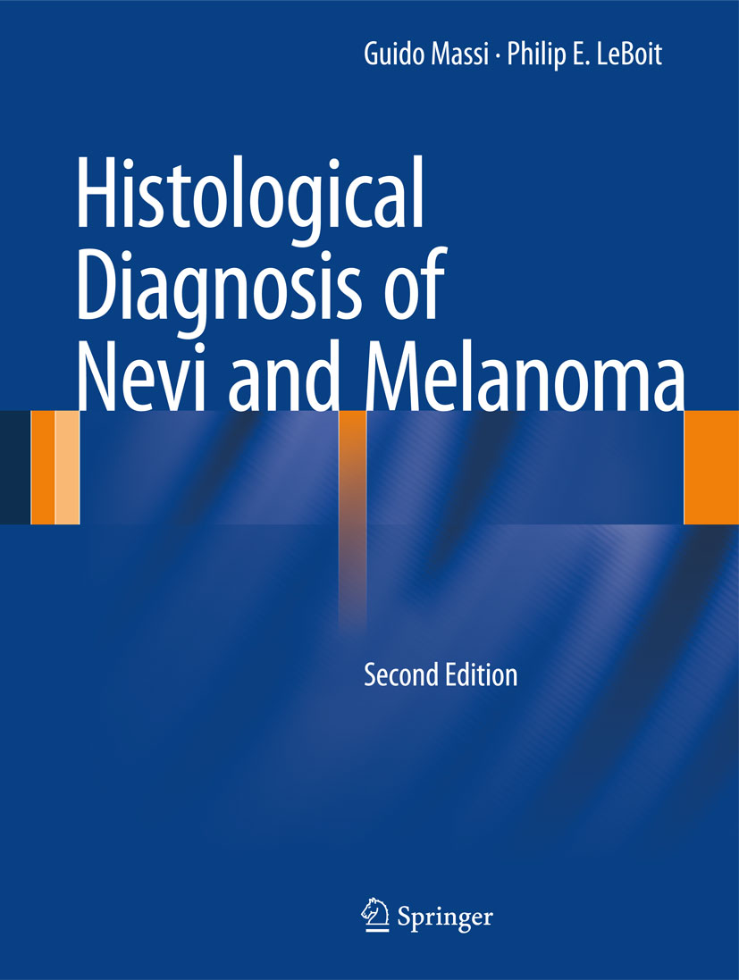 The histological diagnosis of nevi and melanoma